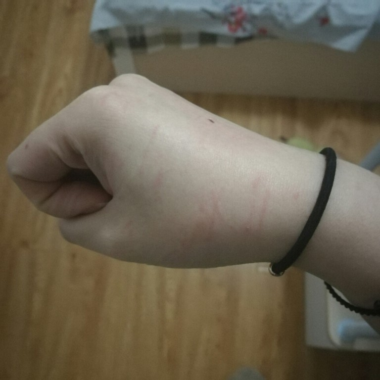 猫咪咬人的坏毛病怎么可以改掉呀? 猫咪快一岁了,已绝育, 但
